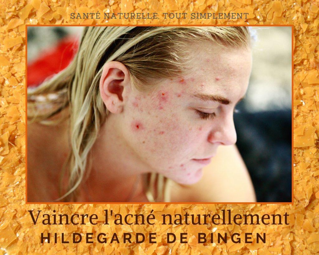 4 Conseils naturels contre l'acné avec Hildegarde de Bingen